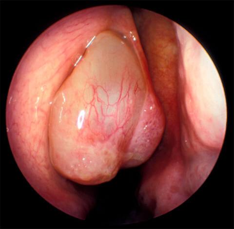 Удаление полипов в носу - относительно не сложная и быстрая операция.