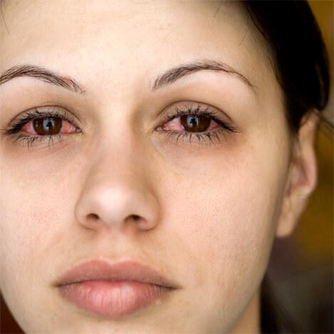 Хорошо видны отеки под глазами и признаки аллергического конъюнктивита.