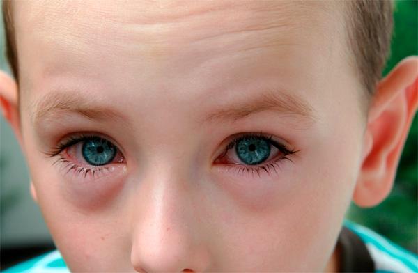 Именно лоратадин позволяет практически на сутки снять симптомы аллергического насморка.