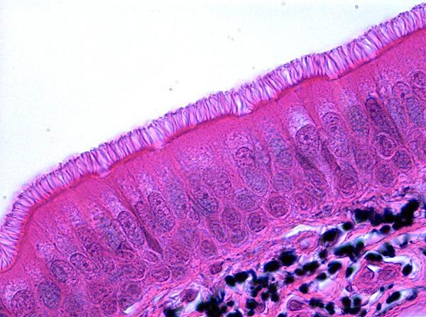 Ворсинки на поверхности клеток обеспечивают выведение слизи из носа. Когда часть их отмирает, этот транспорт замедляется.