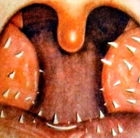 Во многих случаях такой гиперкератоз неизлечим и устраняется только при удалении миндалин.
