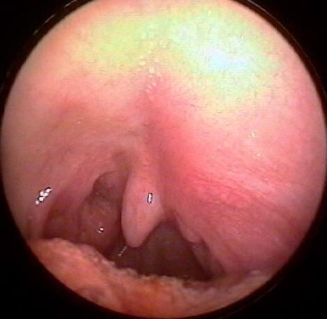 Тяжелый левосторонний абсцесс, при котором больной не может сглатывать слюну.
