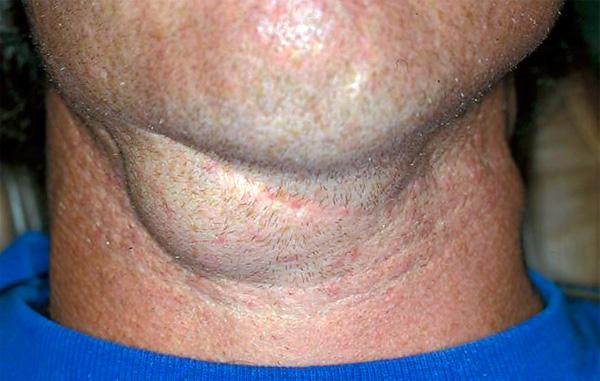 Лимфоузлы после ангины возвращаются к нормальным размерам значительно позднее, чем завершается сама болезнь.