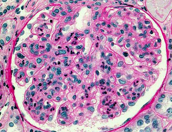 Гломерулонефрит - неизлечимое аутоиммунное заболевание, одной из причин которого может стать невылеченная стрептококковая инфекция при ангине.