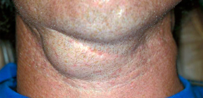 Как долго болит горло при ангине?