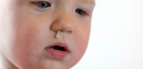 Почему у ребенка долго не проходит насморк и какое лечение требуется в такой ситуации?