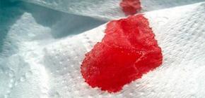 Может ли гнойная ангина протекать с кровотечениями?