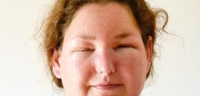 Характерные симптомы аллергического насморка