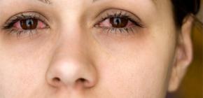Почему возникают постоянный насморк и чихание?