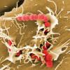 Ангина — это бактериальное заболевание, или вирусное?