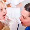 Вирусная ангина, её симптомы и внешний вид горла при ней