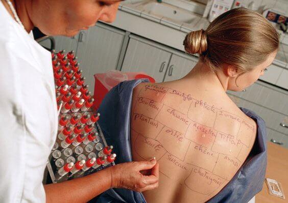 Кожные пробы для выявления чувствительности к аллергену
