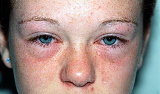 Внешний вид беременной при аллергическом насморке