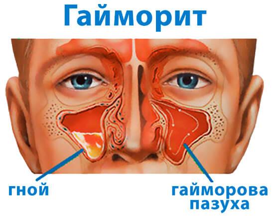 Нос и синусы носа при гайморите