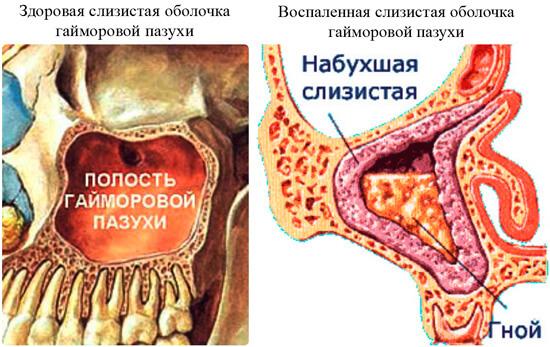 Две схемы, демонстрирующие гайморовы пазухи здорового и больного гайморитом человека