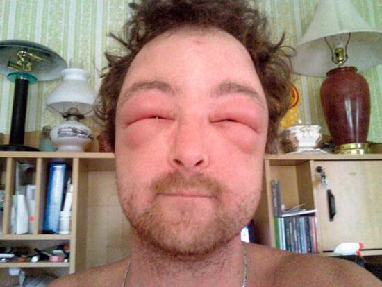 Мужчина с выраженной аллергией