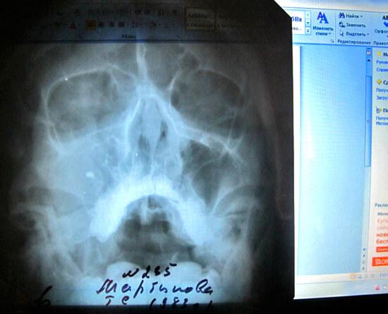 Рентгеновское фото пазух носа при гайморите