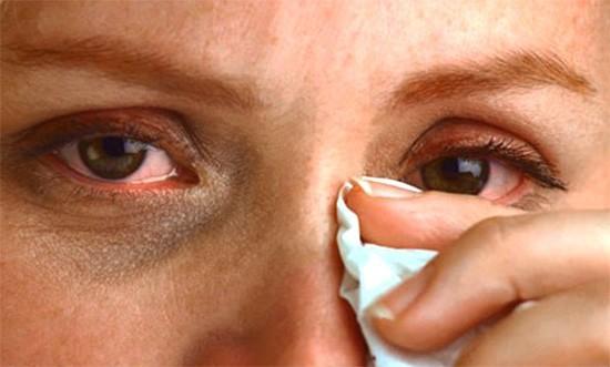 Круги под глазами при аллергии