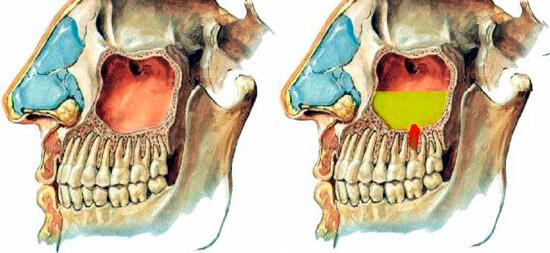Гайморит может стать одной из причин воспаления слизистой оболочки и, как следстие - заложенности носа.