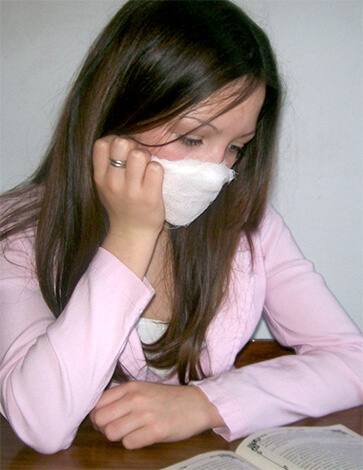 Самое простое барьерное средство для защиты от аллергенов — повязка из ваты и марли