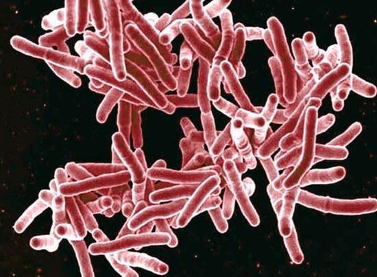 Туберкулез вызывается микобактериями, заболевание часто сопровождается ринитами.