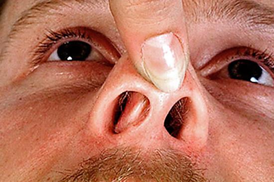 При искривлении носовой перегородки решается вопрос о хирургическом лечении.