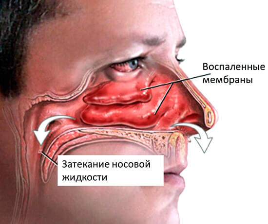 Схема удаления слизи из носа