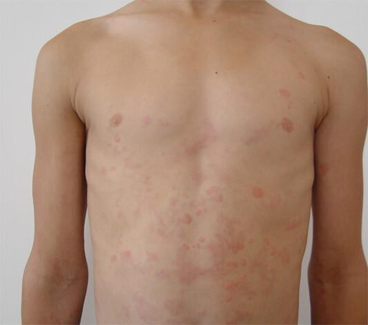 Аллергия у мальчика