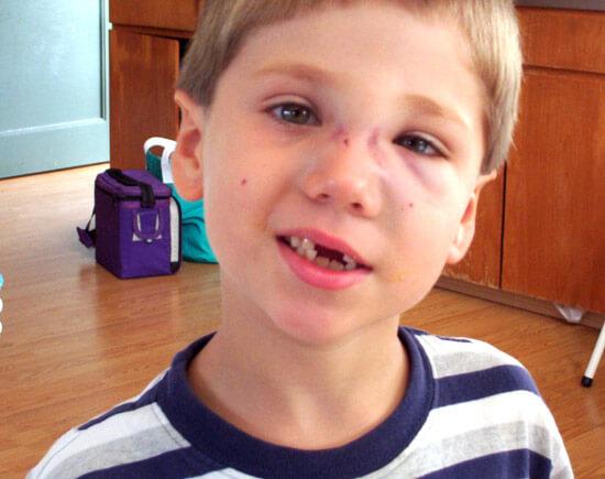 Травма носа у ребенка через несколько дней после несчастного случая