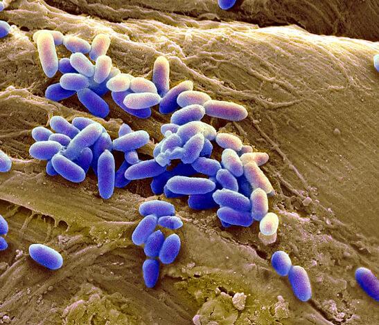 Синегнойная палочка (Pseudomonas aeruginosa)