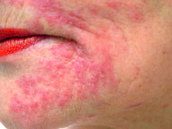 Аллергия на Альбуцид