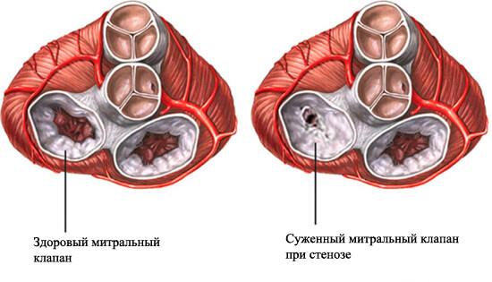 повреждение митрального клапана