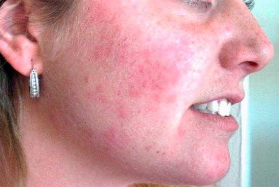 Аллергия при использовании народных средств может ограничиться сыпью на коже, а может привести к развитию анафилактического шока.