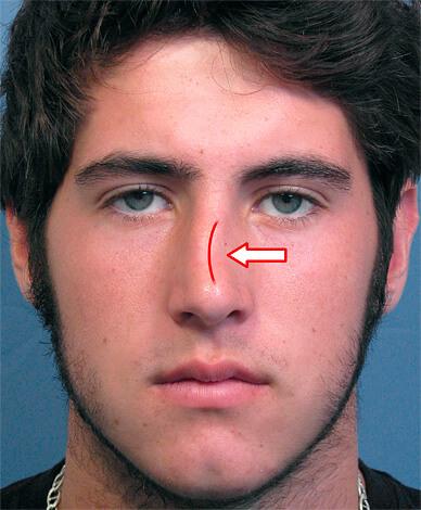 Искривлении носовой перегородки.
