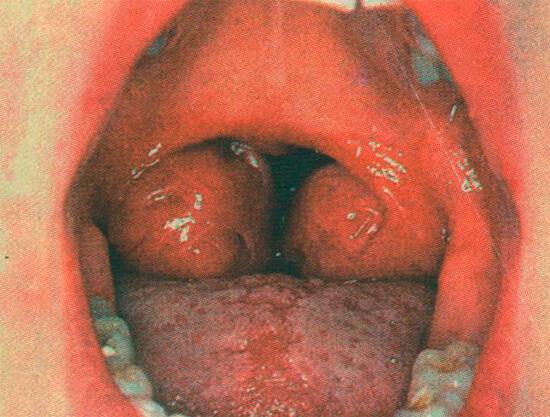 фото катаральной ангины