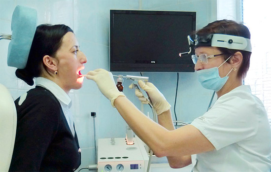 заразна ли катаральная ангина