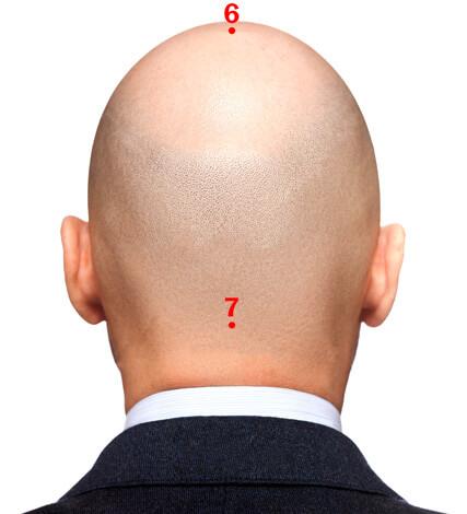 Точки акупунктуры на голове