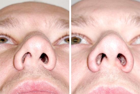 На фотографии показан пример искривления носовой перегородки