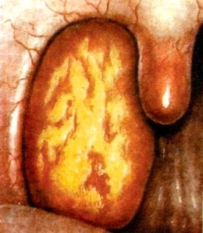 Иллюстрация лакунарной ангины из учебника Пальчуна