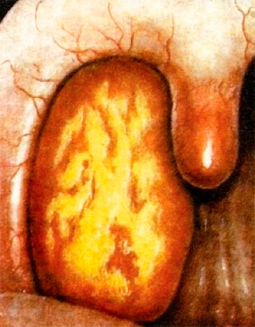 Миндалина при лакунарной ангине