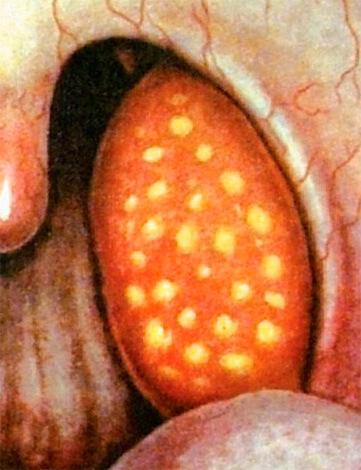 Миндалина при фолликулярной ангине