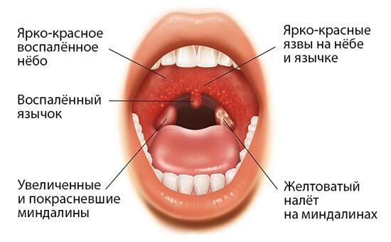 Набор признаков бактериальной ангины образует картину, по которой легко поставить точный диагноз