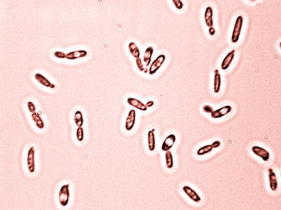 При частом пересыхании полости рта слюна не действует на грибки и те могут активно размножаться.
