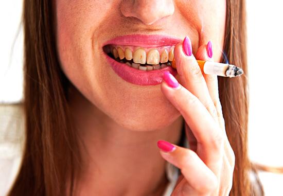 Возникновение грибковой ангины провоцируют сухость во рту и ослабление дезинфицирующих свойств слюны.
