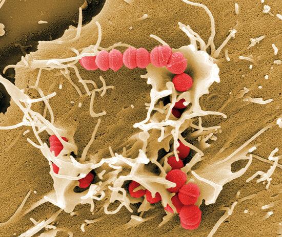 Ангина вызывается только бактериями, чаще всего - стрептококками, реже - стафилококками.