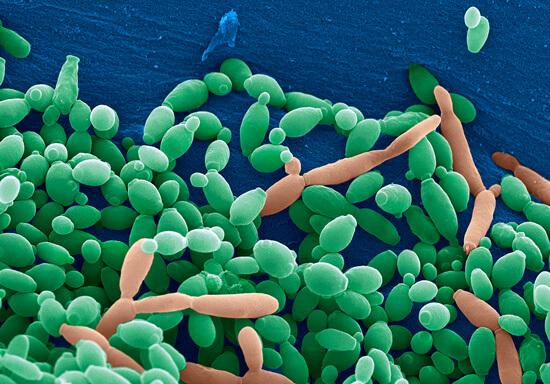 Неосторожное применение антибиотиков может привести к активизации грибковой микрофлоры в полости рта и других органах, в частности, во влагалище.