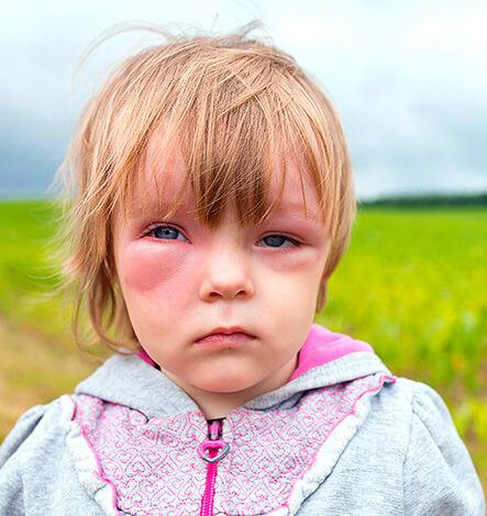 Анафилаксия на прием антибиотиков у детей - явление редкое, но вероятное.