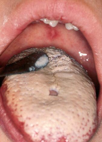 Густой грибковый налет на языке. Это не ангина, а просто кандидоз полости рта: поражения горла здесь нет.