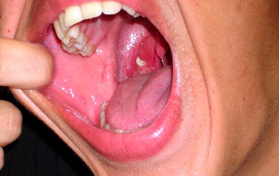Достаточно редкий случай, когда грибковое поражение локализуется только на миндалинах.