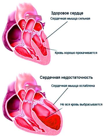 Проблемы с сердцем и почками - основные осложнения бактериальной ангины.